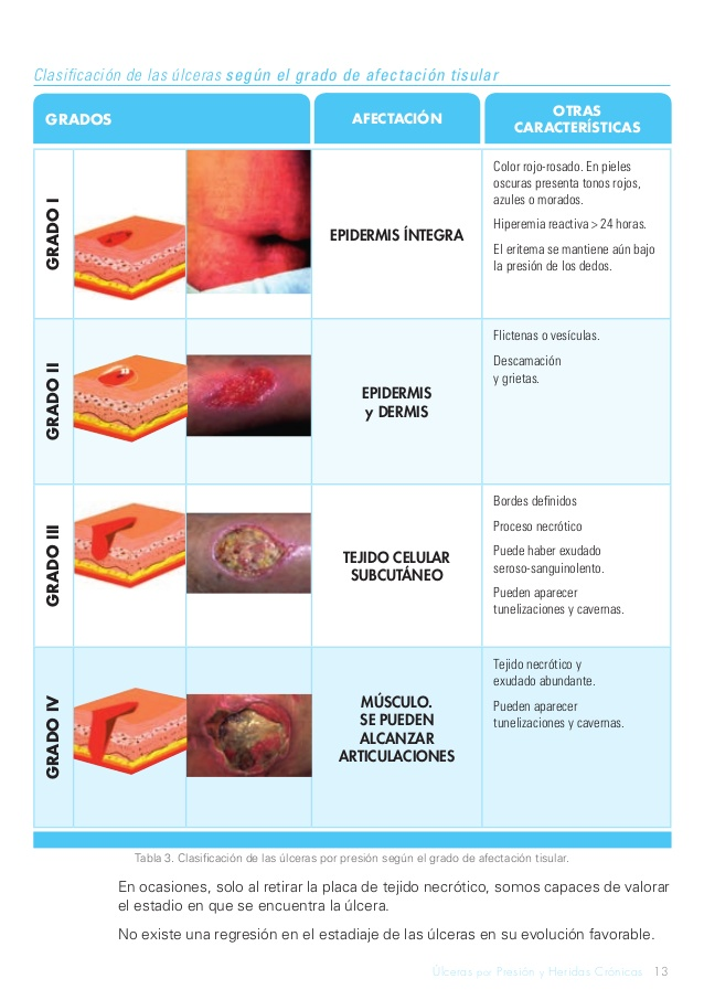 Ulceras por decubito: proceso de ulceras por decubito