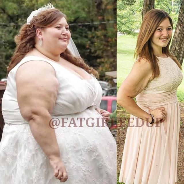 Она похудела на 140 кг. Невероятная история преображения