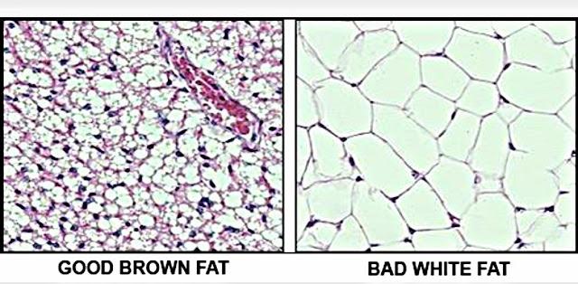 Brown Fat