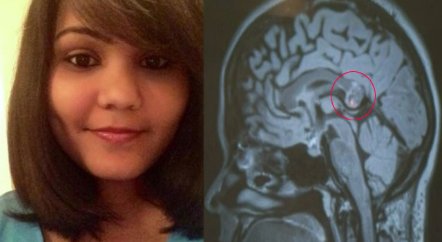 Indian Woman Discovered Her Evil Twin Sister Inside Her Brain