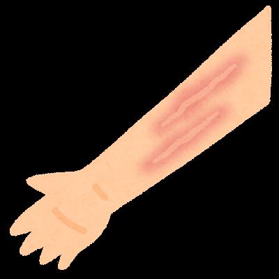 ミミズ腫れのイラスト