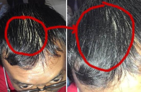 Toppik Lebatkan Rambut 30 Saat