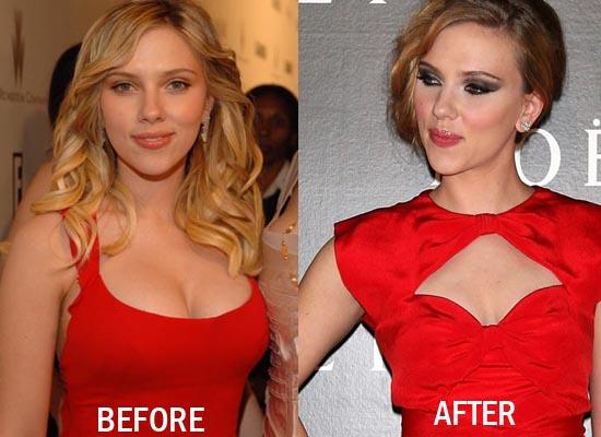 breast implant Bad