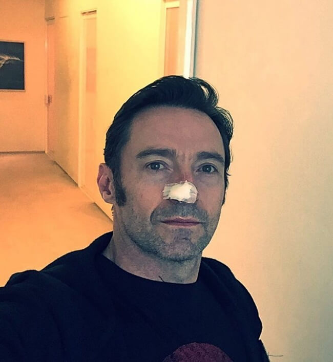 15 Pictures That Prove How Incredibly Powerful The Human Soul Can Be - In 2017, Hugh Jackman won his 5th fight with cancer.