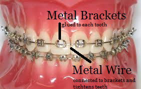braces, metal braces, metal brackets, metal wire, clean teeth, perfect teeth, brace face