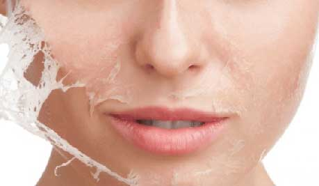 Cara mengangkat sel kulit mati