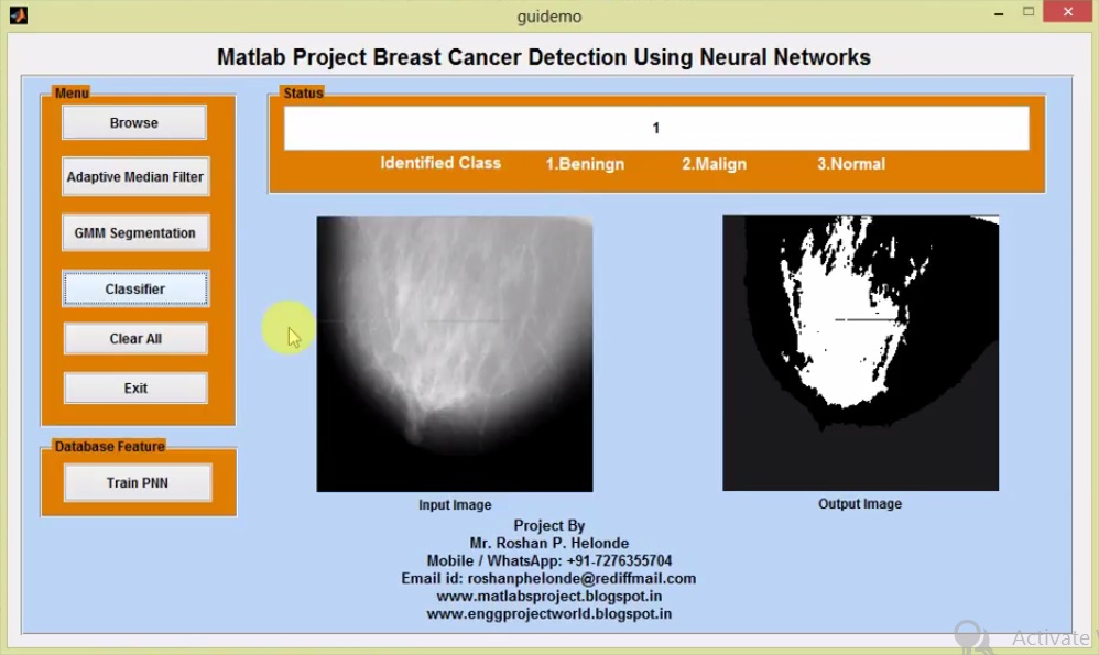 Breast Cancer Detection Using Image Processing Matlab