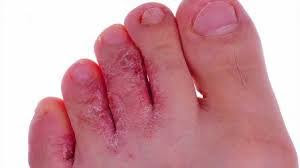 Obat eksim di kaki