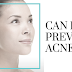 Acne Prevention - Is Sunlight Good for Acne?