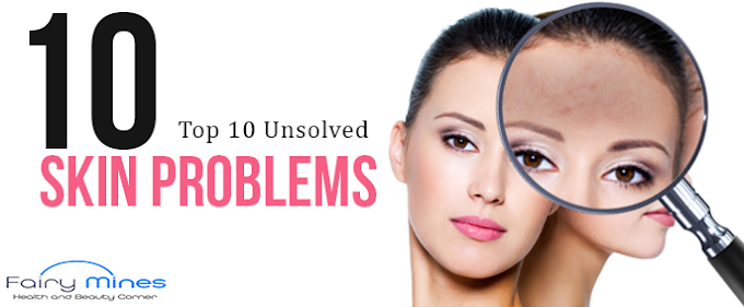 *MUST READ* | Top 10 Unsolved Skin Care Problems