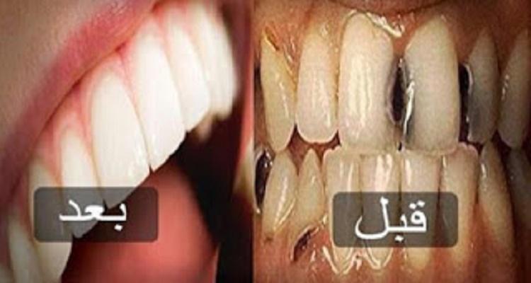 الطريقة الرائعة والبسيطة للتخلص من تسوس الاسنان والجير المتراكم عليها