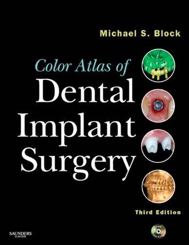 Color Atlas of Dental Implant Surgery - Michael S. Block - 3rd.ed. © 2011.pdf