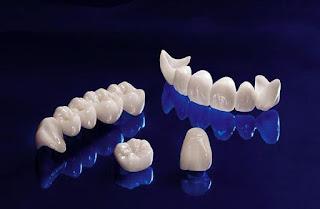 Độ bền răng sứ titan có lâu không