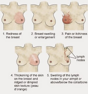 Breast Cancer Symptoms Pictures
