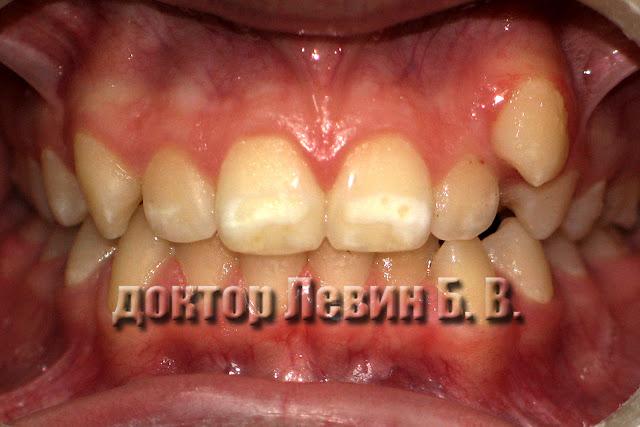 На снимке прикус пациента. Левый верхний клык занимает атипичное положение. Дистопия клыка.