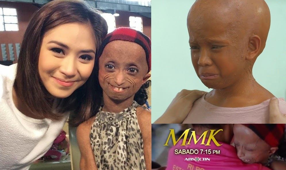 Xyriel Manabat plays 'progeria patient' in MMK ( December 20, 2014)