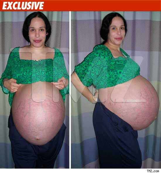 Mom With Sextuplets 85