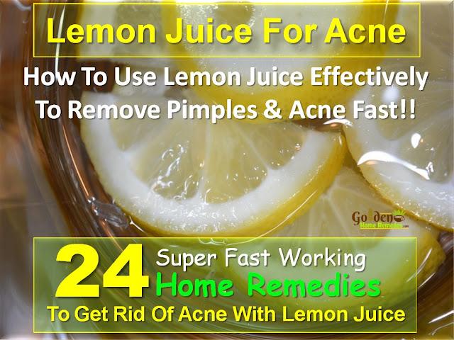 Lemon For Acne, Lemon Acne, Is Lemon Good For Acne, How To Use Lemon For Acne, How To Get Rid Of Acne With Lemon, Lemon And Acne, Lemon For Acne Treatment, Acne Treatment With Lemon,
