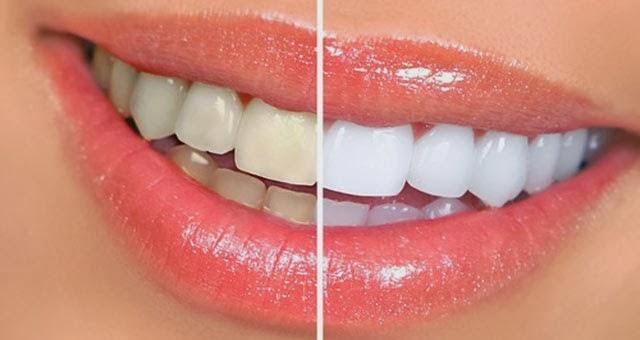 Cara Memutihkan Gigi Kuning Secara Cepat dan Mudah