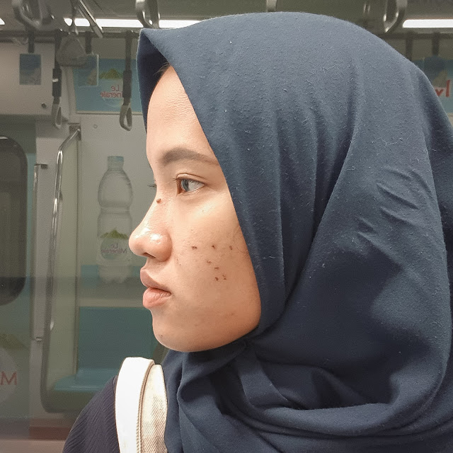 After Laser Black Doll Treatment Enhaka Beauty Care