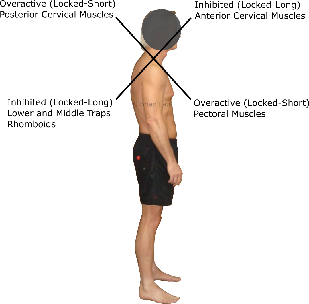 Anatomy Of The Sinew Channels Head Forward Posture Part 2 Upper Cross Syndrome And The Sinew Channel