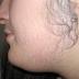 تداوی تخصصی مو های اضافی