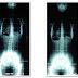 Tratamento Escoliose – Reeducação de Postura Global