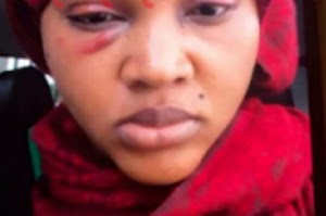 Are you serious? Yoruba Actress Mercy Aigbe was Seriously Brutalized By Her Husband Over Alleged Infidelity(Photo's)