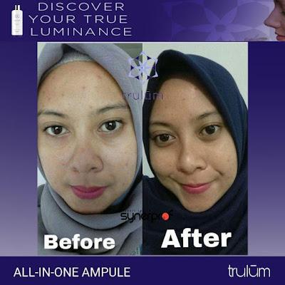 Jual Obat Penghilang Kantung Mata Trulum Skincare Tetap Kaur