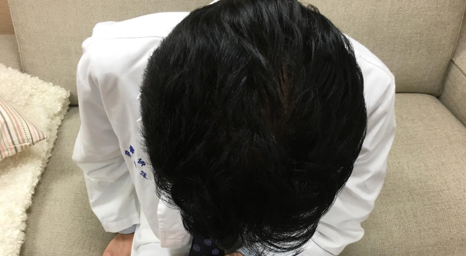 【影片】植髮手術會痛嗎? - 謝宗廷醫師
