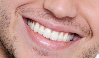 diş apsesi nasıl geçer kesin çözümü