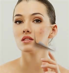 Numerous ways would we be able to do to apply skin break out medicine. In any case, we likewise need to recollect that that there are a few things that must be recognized in the medication of pimple inflamation. Normally we will recognize skin conditions that we have. Ordinary skin is not slick and not dry, normally a touch of oil in the territory of T. Furthermore facial pores essentially intangible. Your skin will feel delicate and supple everywhere throughout the face equally on dry skin fat organs to work off, so the skin looks dull, meager, flaky, smooth and wrinkle quicker roll out. Facial pores are not unmistakable, however there will be skin - peeling skin, feels tight and dry inverse of dry skin, slick skin has oil organs are working with the intention that the skin looks gleaming, thick, and also effortlessly Acne Treatment.