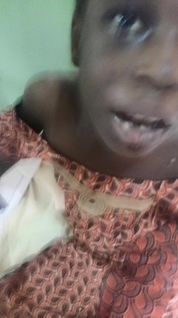 Pics: Evil Stepmother Slashes, Burns Girl after Killing her Mother & Sister in Gombe State
