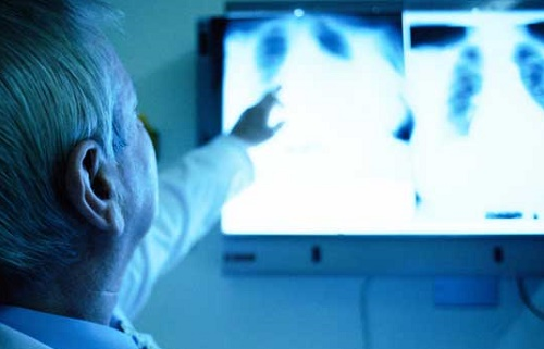 http://www.mesoth.net/2016/05/diagnosed-with-mesothelioma.html