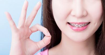 Niềng răng móm trong trường hợp nào?