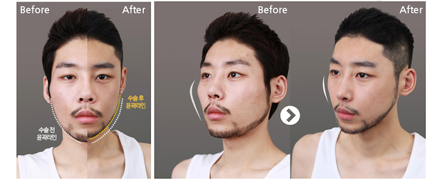 Smaller Face Features With Wonjin 3D Cheekbone Reduction