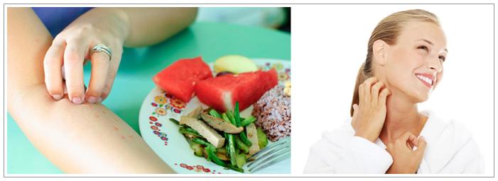 Cara Mengobati Gatal Karena Alergi Makanan Secara Alami