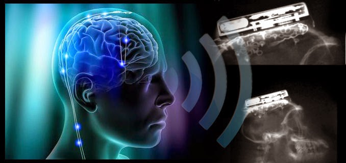 A Brain-Computer Interface That Works Wirelessly