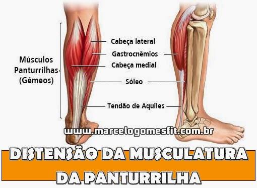 Distensão da Musculatura da Panturrilha