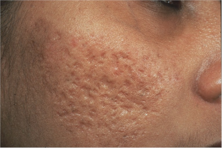 los mejores tratamientos para las cicatrices de acne. Black Bedroom Furniture Sets. Home Design Ideas