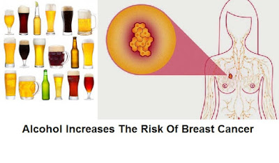 Breast Cancer Research: Drinking Alcohol Increases The Risk Of Breast Cancer