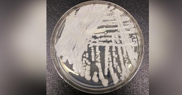 Metropolitan Engineering Consulting Forensics Expert Engineers - Map of us candida auris infections