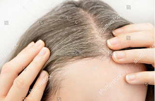 remedies for white hairs,natural tips for white hairs,white hairs treatment