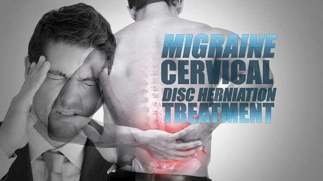 Migraine & Cervical Disc Herniation Treatment | El Paso, TX Chiropractor