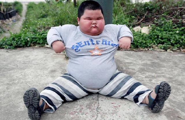 http://www.katasaya.net/2016/08/kisah-anak-dengan-tubuh-berbeda-dari-anak-lain.html