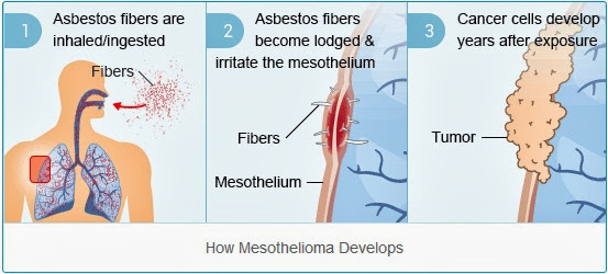 Variety of Factors Mesothelioma Suits