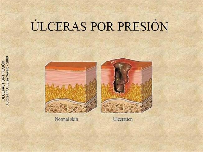 TICS: Introducción a las úlceras por presión