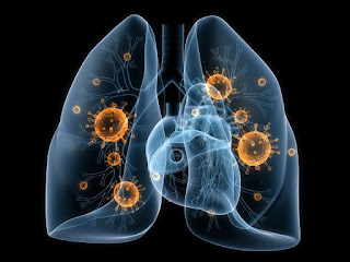 cara menyembuhkan pneumonia