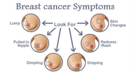 Learn These Inflammatory Breast Cancer Symptoms