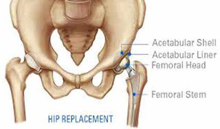 total-hip-replacement-surgery-is-solution-of-hip-related-treatment